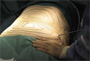 Ihmiset tekevät vahinkoilmoituksia, kun he ovat itse asiassa käyneet kauneusleikkauksissa, vakuutusyhtiö Ifin edustaja kertoo.  Kuvituskuva. LEHTIKUVA / PEKKA SAKKI