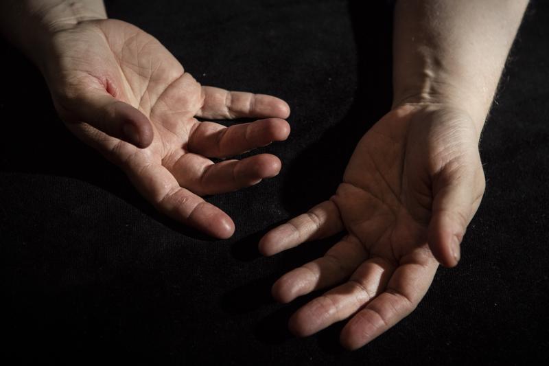 – Käsiin kohdistuu nykyään paljon rasitusta, sillä lasten peppujen sekä omien ja lasten käsien peseminen ja puhdistuspyyhkeiden käyttäminen saa ihon kuivumaan entisestään, Katja Palola toteaa.