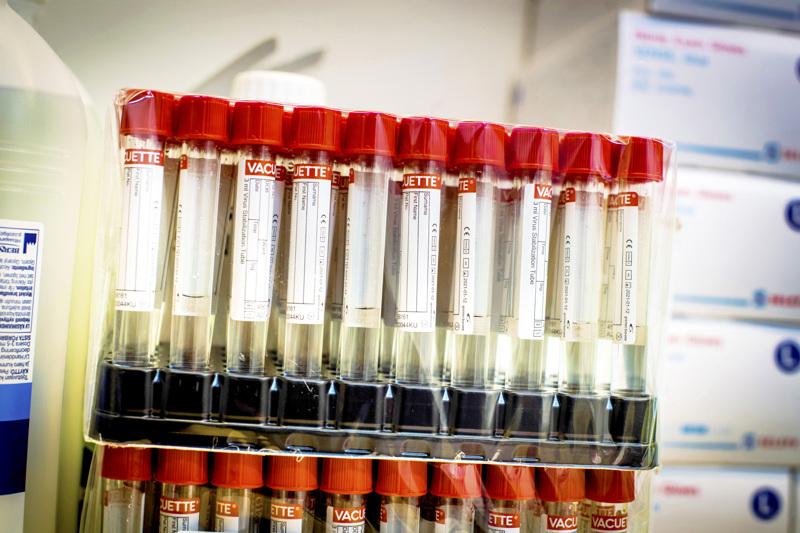 Koronatestiin pitää mennä pienistäkin koronaan viittaavista oireista.